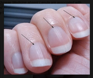 Low Energy? Look At Your Fingernail Moons   The Green Life B12 Deficiency Nails